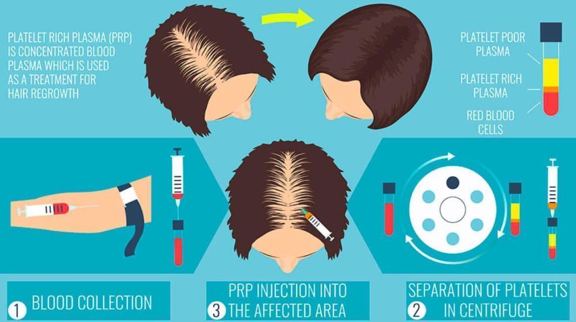 prp treatment for hair fall
