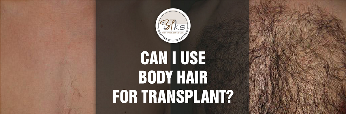 Can I Use Body Hair For Transplant