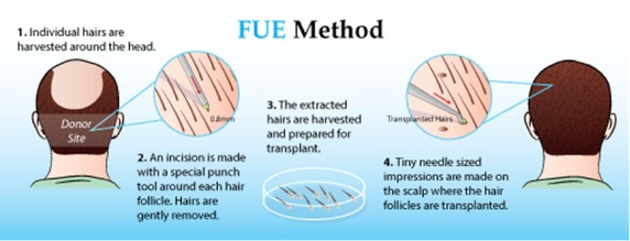 FUE Hair Transplant in Gurgaon