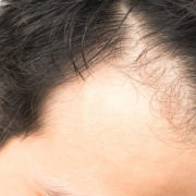 Advantages and Disadvantages of Hair Transplant