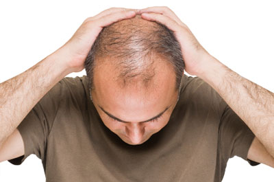 hair loss treatment in gurgaon