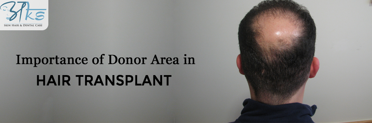 Importance of Donor Area in Hair Transplant